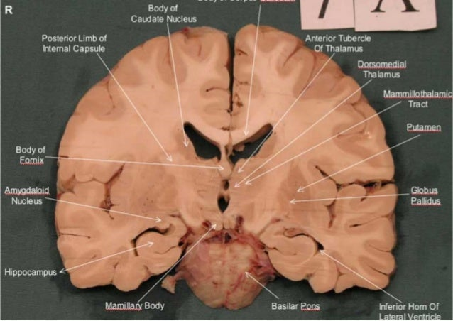 Brain slices anatomy