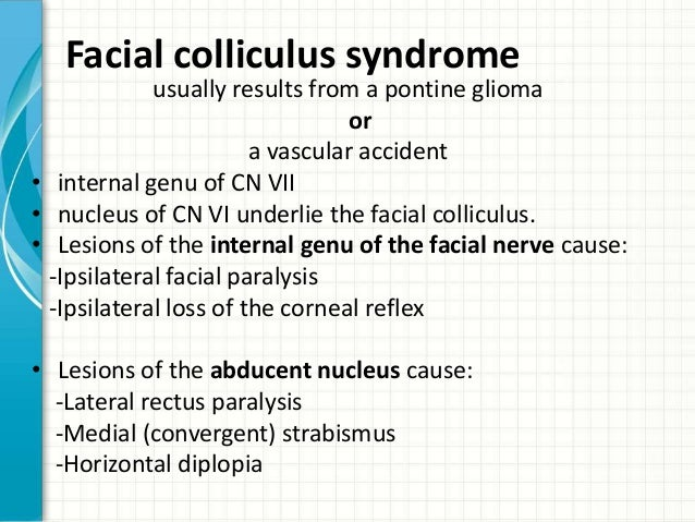 Facial colliculus syndrome picture 821
