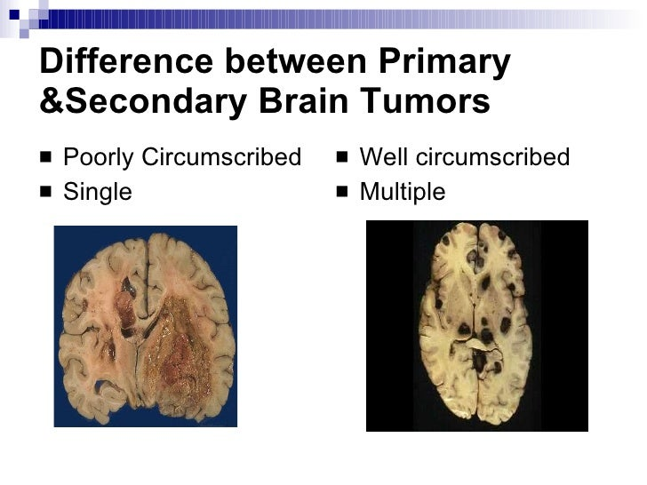 ... 3. Difference between Primary &Secondary Brain Tumors ...