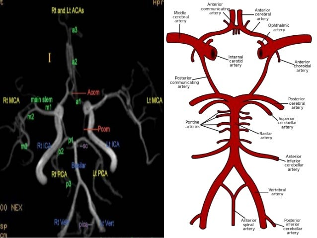Brain Vascular Anatomy With Mra And Mri Correlation