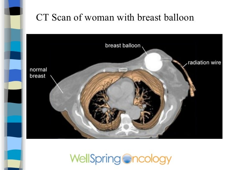 Breast cancer cat scan