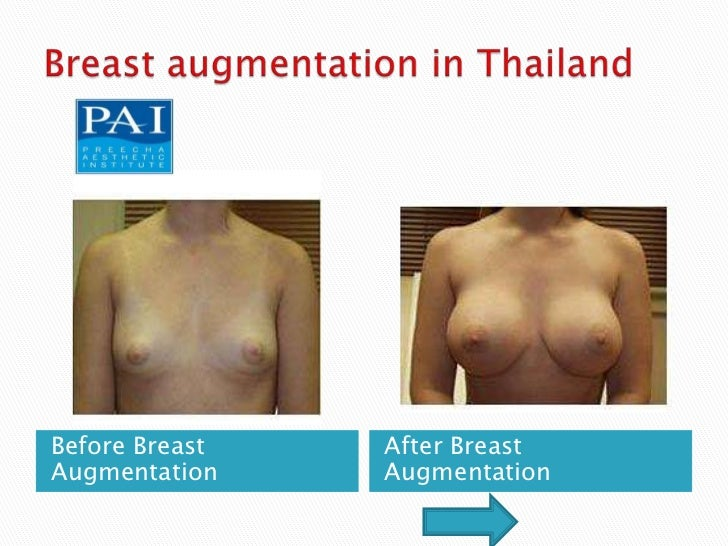 Before Breast   After BreastAugmentation    Augmentation