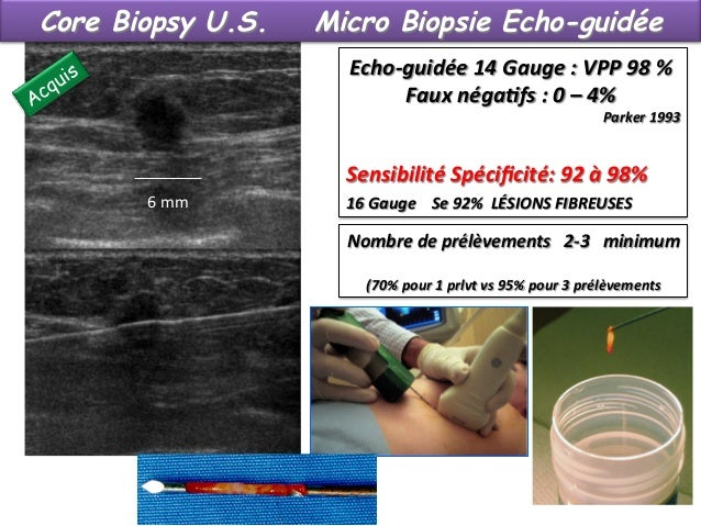 Core Biopsy : confirmation BÉNIN / MALIN  Ø Diagnostic bénin / Malin Ø Bilan des lésions (multifocales , multicentriqu...