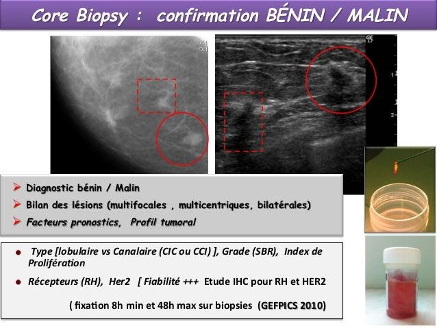 Limites et difficultés des micro biopsies écho-guidées Limites  Lésions de petite taille ? 3 -4 mm ?  Visibilité