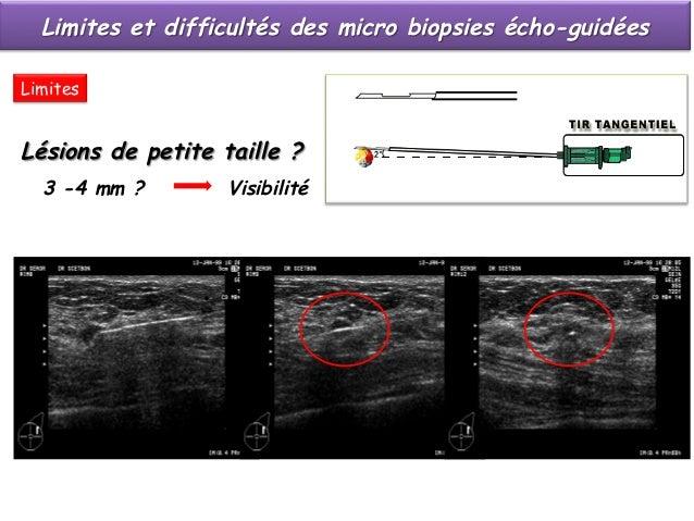 Limites et difficultés des micro biopsies écho-guidées  § Lésions de petite taille, difficiles à repérer  faute de contr...