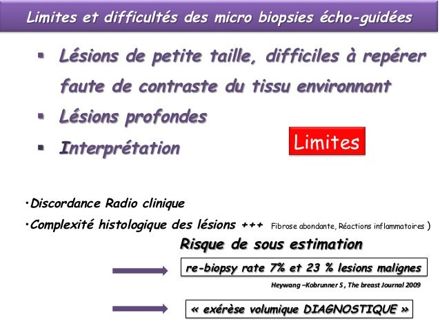 Micro biopsies écho-guidées  ( Core Biopsy U.S.)  Place  clip  if  any  ques.on  of  difficulty  iden.fying  ...
