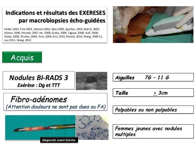 Non  Indicaons  des  EXERESES  par   macrobiopsies  echo-‐guidées    Parker  2001,  Fine  2002,  Jo...