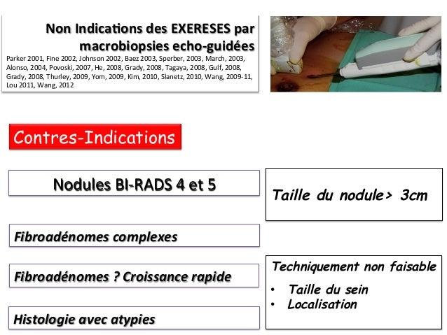 Macrobiopsies écho-guidées  (VAB US)  Limites Lésions  papillaires  ??  :  sous  es(ma(on  5  %       Pa...