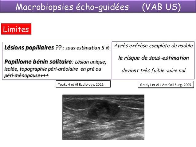 Les Suites des macrobiopsies écho-guidées Complications Hématome 3 à 10%  Lésion cutanée  0,6%  Etat des lieux post biopsi...