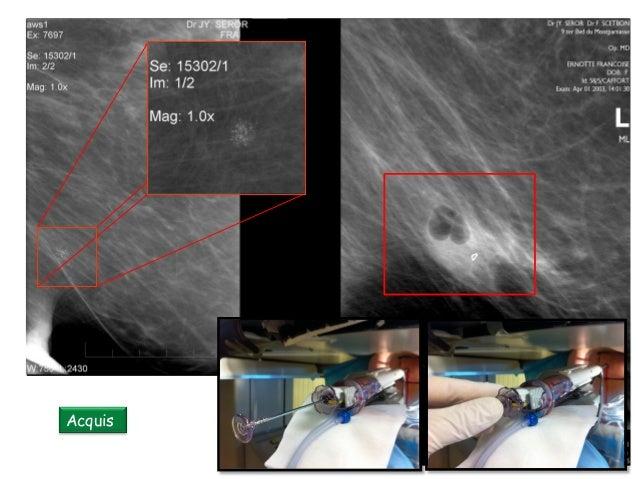 Microbiopsie ou macrobiopsie avec aspiration Les limites des biopsies par fragmentation : EXÉRÈSE MONOBLOC Intact® BLES Sy...