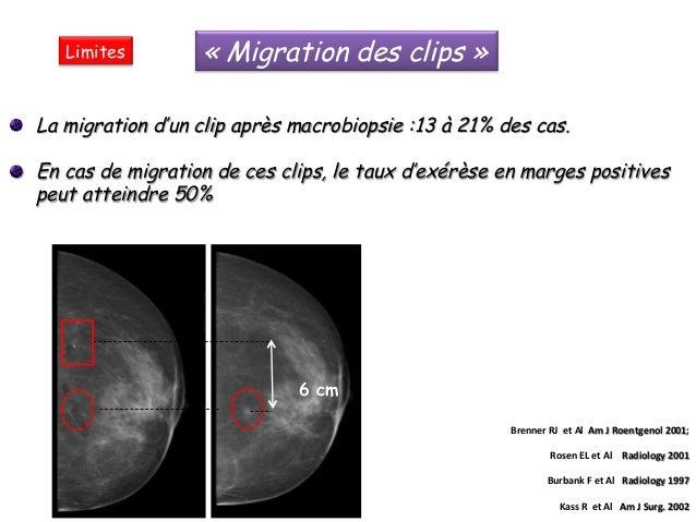 Macrobiopsie par Intact System sous échographie