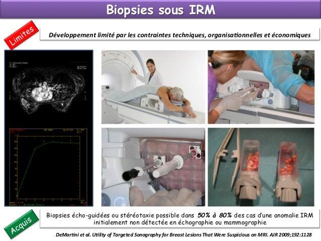 Après un geste interventionnel Rôles et devoirs du radiologue  Responsabilité du Radiologue (+++) Ø Indication +++ justi...