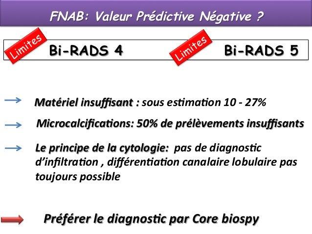 FNAB: Valeur Prédictive Négative ?  Bi-RADS 4  Bi-RADS 5  Matériel  insuffisant  :  sous  es.ma.on  10  -‐  2...