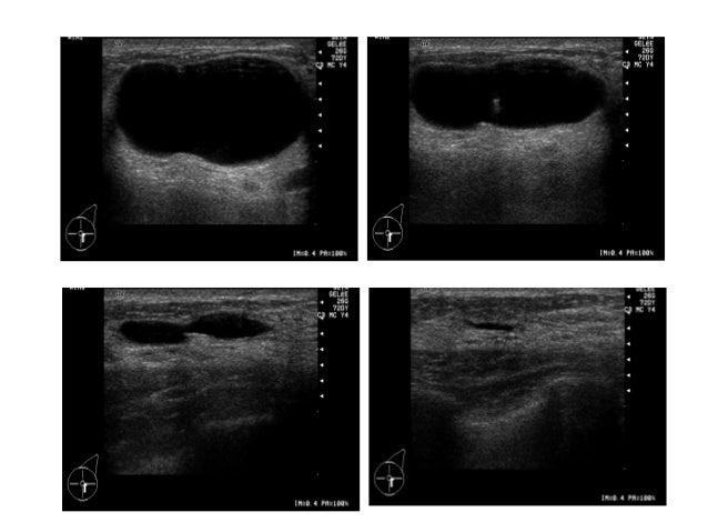 Nodule hypo-échogène pré prothétique Cytoponction écho guidée. Visibilité du spot hyper échogène de l'aiguille dans le nod...