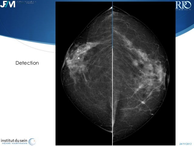 tomosynthesis for breast imaging 3d mammography (breast tomosynthesis) services services dexa (bone densitometry) breast imaging in the pursuit of excellence in breast imaging.