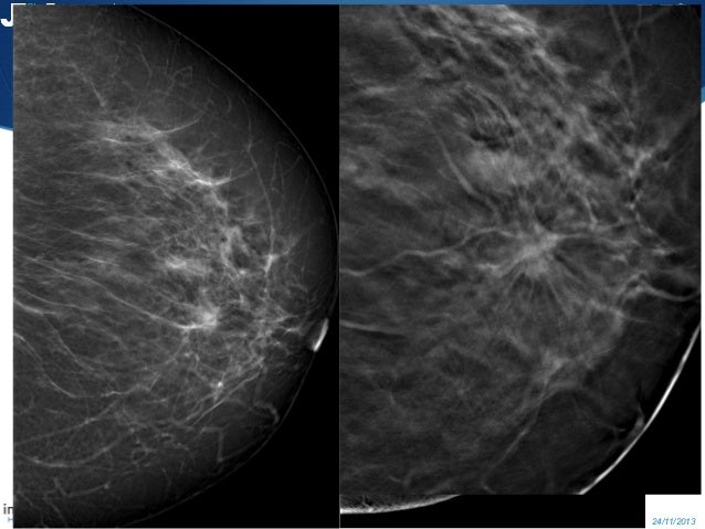 tomosynthesis for breast imaging Digital breast tomosynthesis (dbt) is an imaging technique that allows a volumetric reconstruction of the whole breast from a finite number of low-dose two-dimensional projections obtained by different x-ray tube angles, with a geometric principle very similar to that applied in stratigraphic technique.