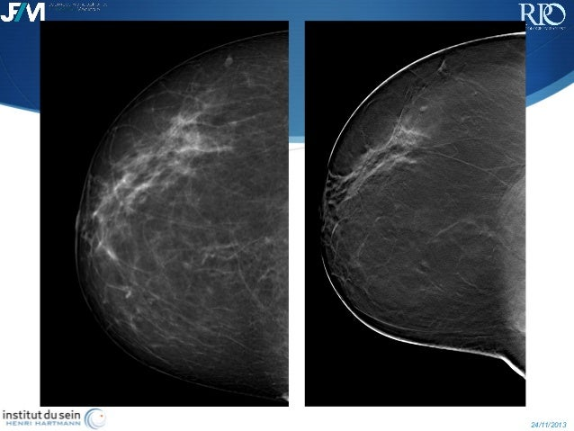 Breast Tomosynthesis