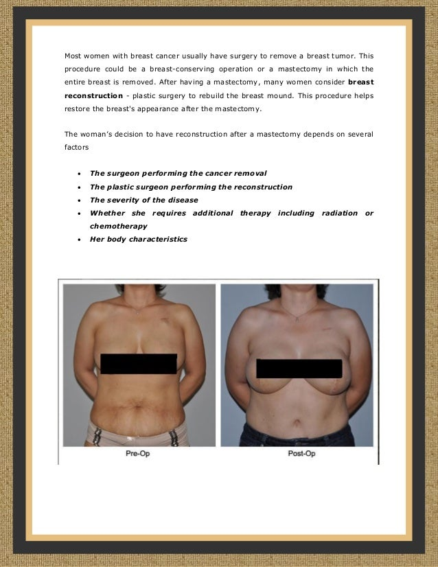 a study on breast reconstruction after mastectomy