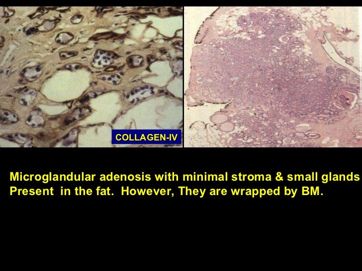 High Yield Breast Pathology: Papillary Breast Lesions: An