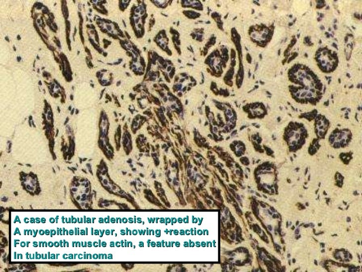 Breast Atypical Lesions