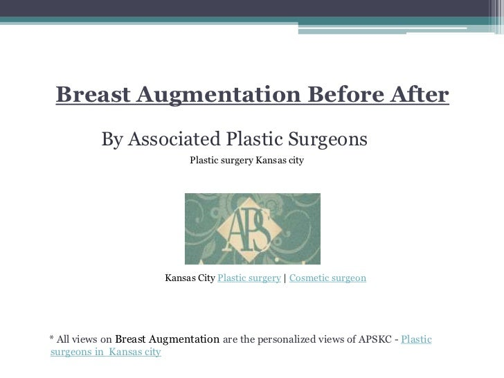 Breast AugmentationBefore After<br />By Associated Plastic Surgeons<br />     * All views on Breast Augmentation are the p...