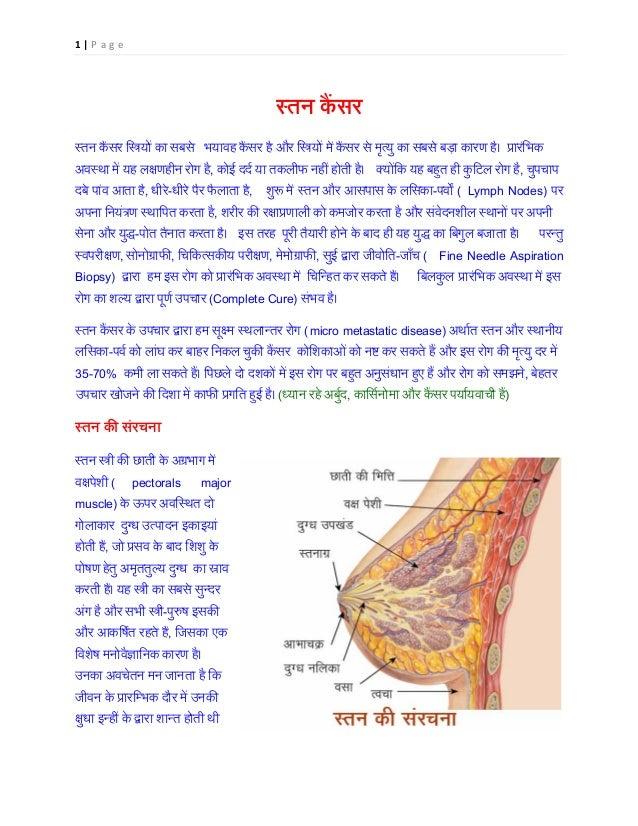 1 | P a g e स्तन क ैं स्तन क ैंसर ि�यों का सब भयावह कैंसर है और ि�योंमें कैंसर से मृत्यु का सबसे बड़ा कारण है। प्र अवस्था म...