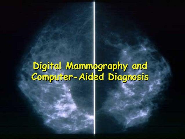1 Digital Mammography andDigital Mammography and Computer-Aided DiagnosisComputer-Aided Diagnosis
