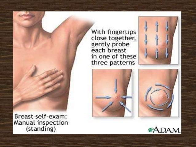 Breast lump mast