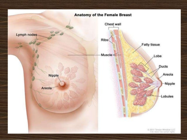 What breast cancer lumps feel like