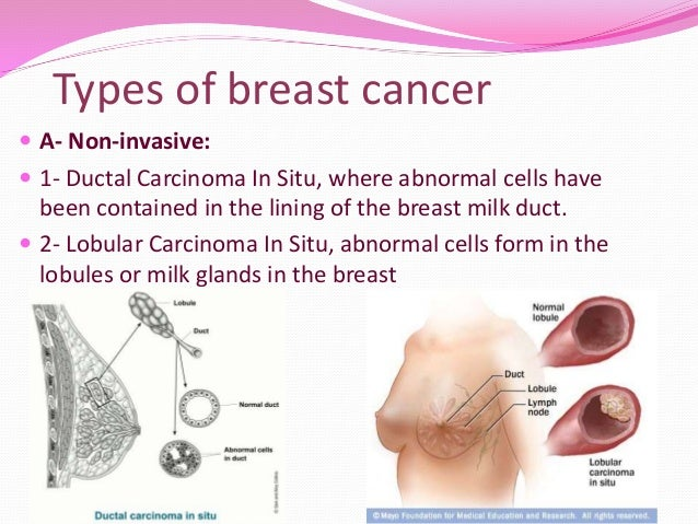 Types of breast cancer ...