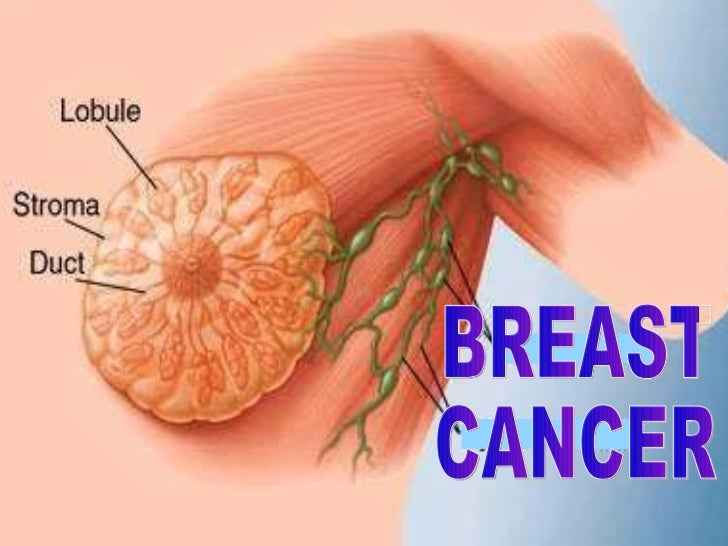 Breast for Breast cancer powerpoint template free download