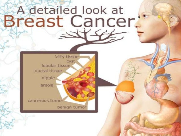 Eposters five-year local recurrence for breast cancer; the.