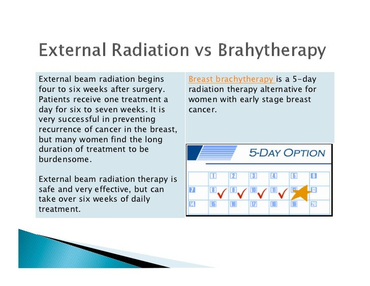 Brachytherapy For Breast Cancer
