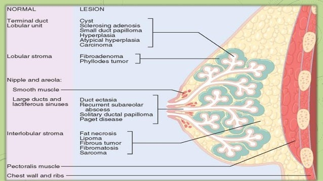 Breast cancer histological types
