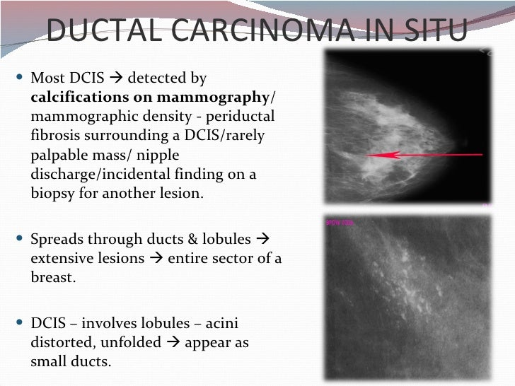 description of ductal carcinoma in situ Definition: dcis or ductal carcinoma in situ refers to cancer cells that are located inside a breast duct without stromal invasion dcis, which is also known as noninvasive or preinvasive breast cancer, is characterized by the proliferation of malignant ductal cells confined within the ductal system of the breast.
