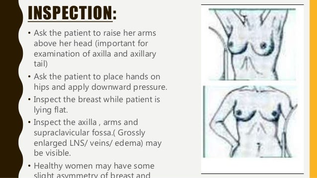 BREAST PALPATION: • Patient lies on the the couch , lying flat with pillow behind the head. • Arms by her side or behind h...