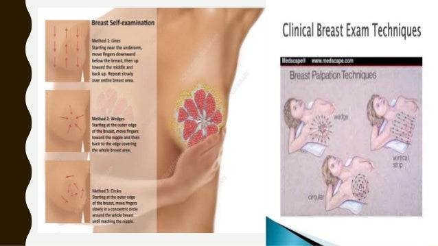 SYSTEM OF THE BREAST PALPATION 1/ZIGZAG • The examiner zigzags up and down • Preferred method for self examination • Advan...