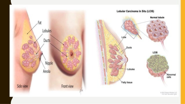 TREATMENT OF CANCER OF THE BREAST: • Two basic principles: 1. To reduce local recurrence 2. To reduce risk of metastatic s...