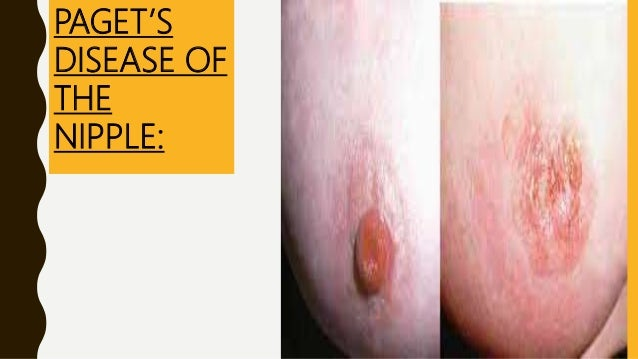CONSERVATIVE BREAST CANCER SURGERY:• Removes the tumour plus a rim of at least 1cm of breast tissue. • Commonly referred t...