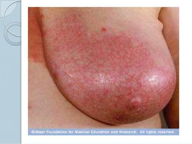 help breast engorgement jpg 422x640