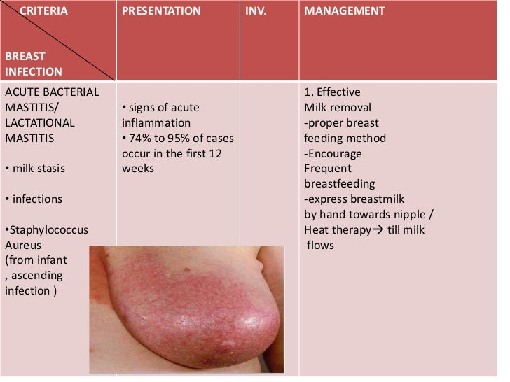 Breast in infection