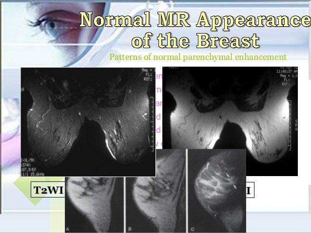 Breast mri 10