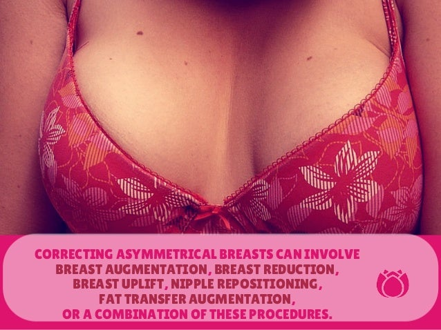 d7075ffa10 CORRECTING ASYMMETRICAL BREASTS CAN INVOLVE BREAST ...
