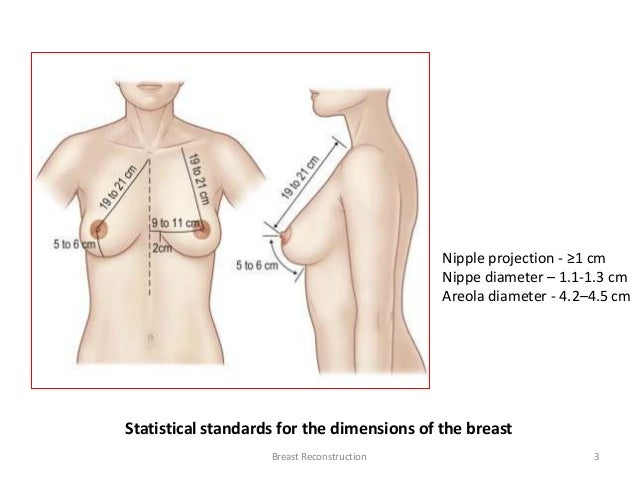 Breast reconstruction manish jian Slide 3