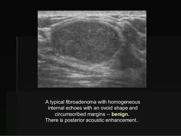What does a tumor look like on a mammogram