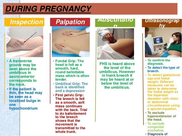 Different types of fetal presentation