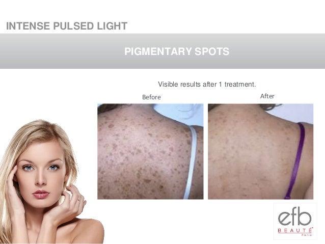 IPL Skin Rejuvenation Machine for Sale at Breizh ca/