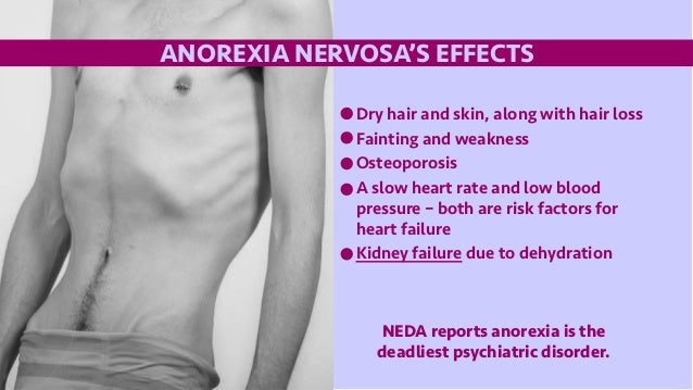 effects of anorexia nervosa In the years preceding diagnosis, individuals with anorexia nervosa (an) attend  more  effect of patient ethnicity and anxiety disorder history.