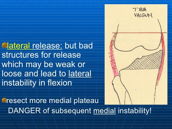 <ul><li>lateral  release:  but bad structures for release  which may be weak or loose and lead to  lateral  instability in...