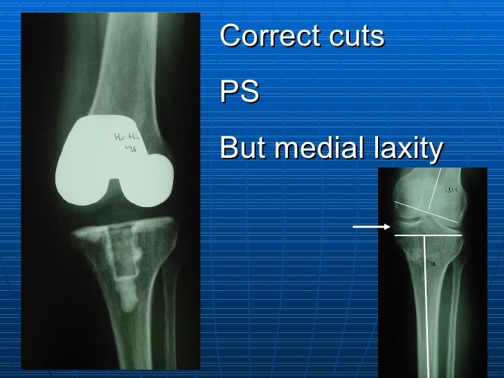 Correct cuts PS But medial laxity